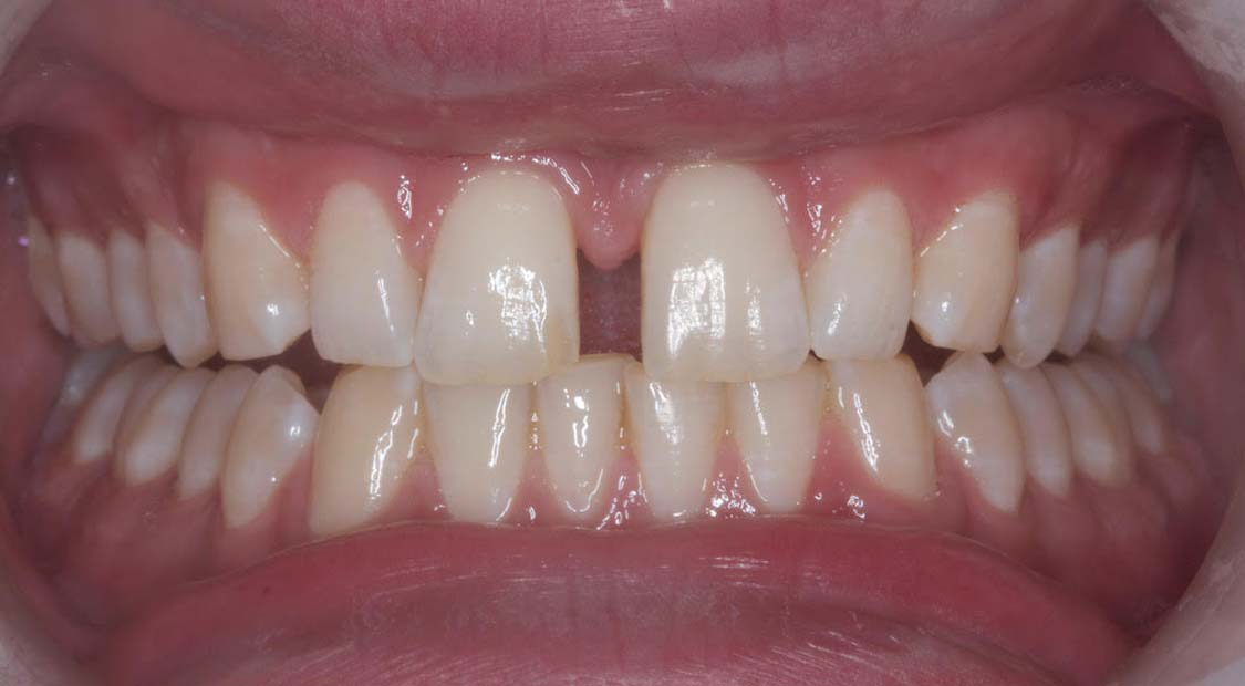 Braces – before