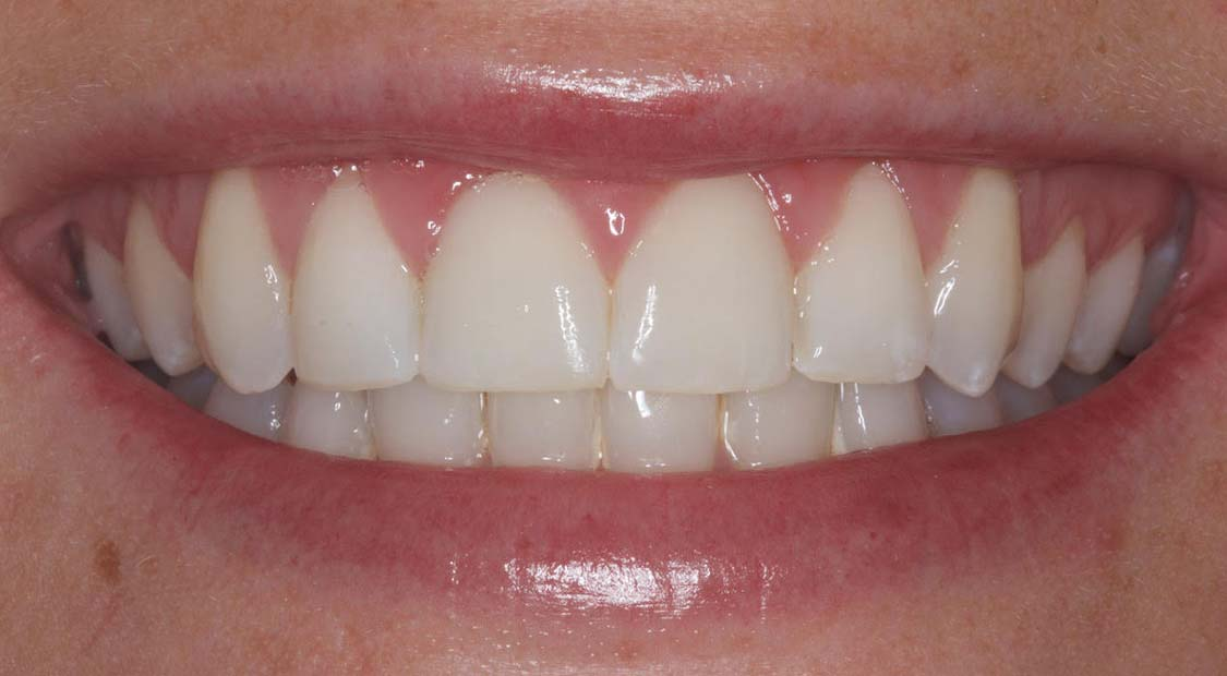 Braces then whitening – after