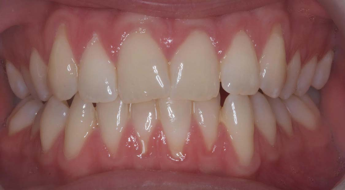 Braces then whitening – before
