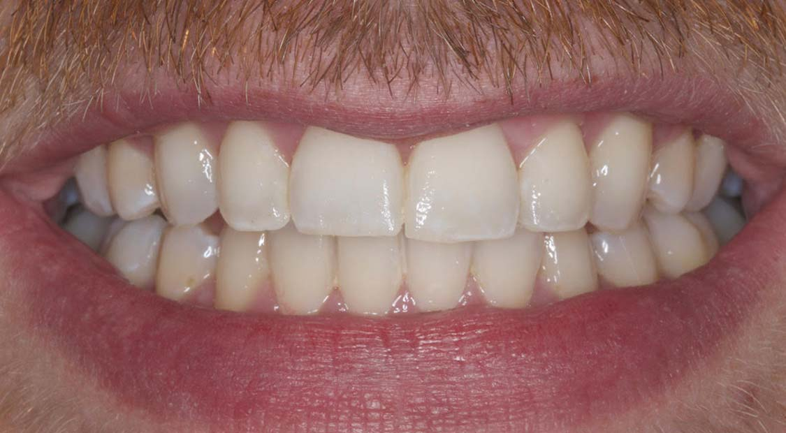 Cosmetic dentistry | The Practice @ Willington