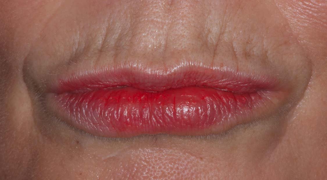 Lip filler – before