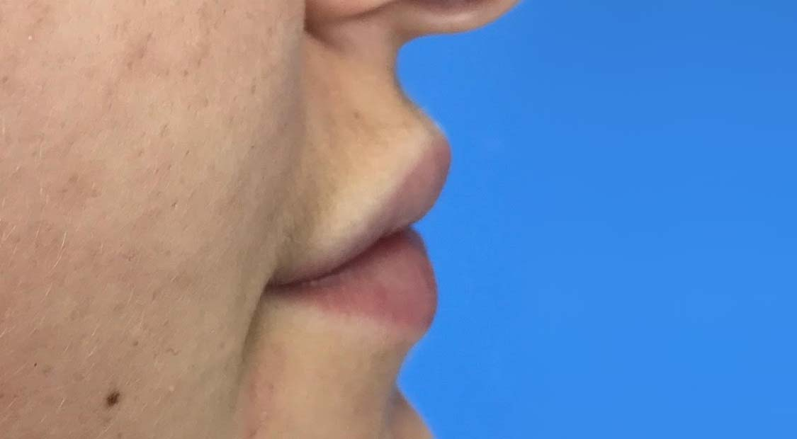 Lip filler – after