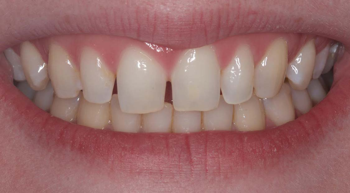 6 veneers to close spaces – before